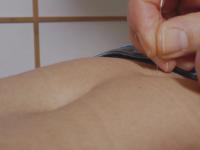 akupunktieren